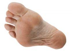 El cuidado del pie es fundamental para el corredor