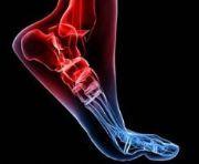 Es importante fortalecer el tobillo para correr