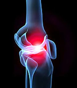 El deterioro del cartílago provoca problemas en articulaciones como la rodilla