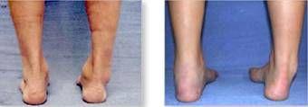 El tobillo inestable es un problema que afecta a algunos niños