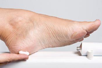La biomecánica de carrera puede provocar que surjan durezas en los pies